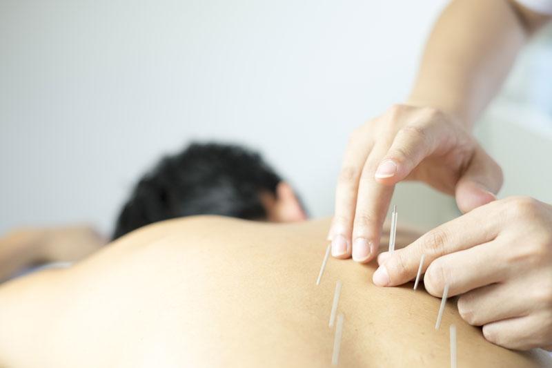 treatment-acupuncture1